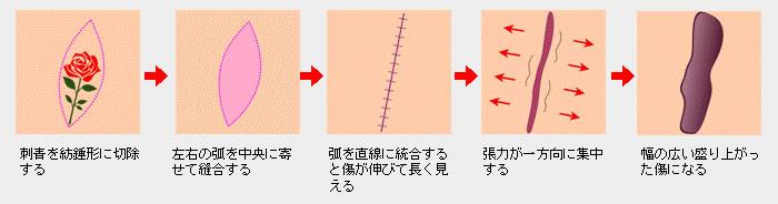 紡錘型切除