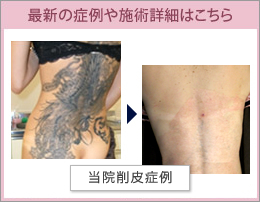 刺青除去専門クリニックはこちら
