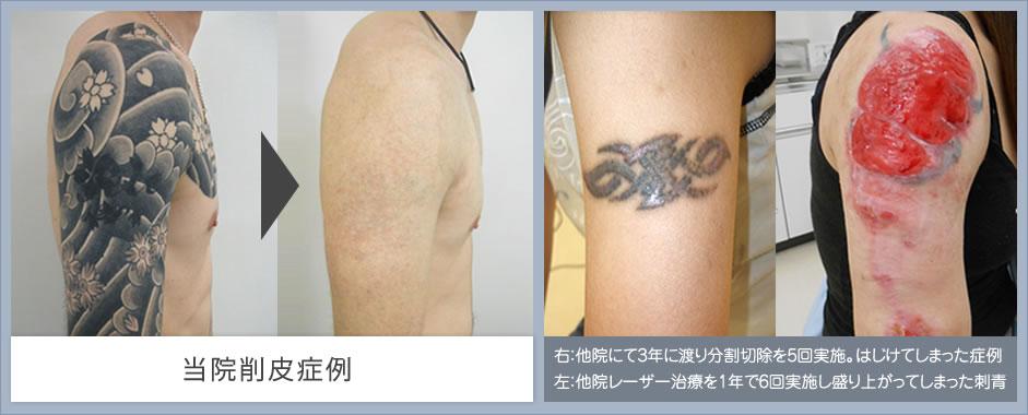 刺青除去 当院削皮症例はこちら